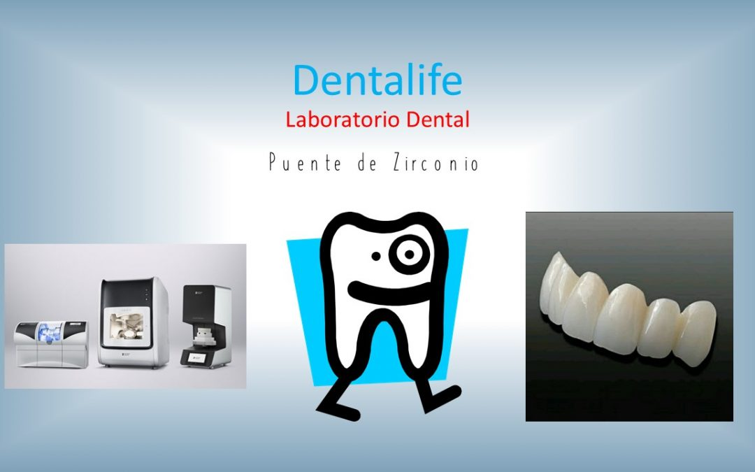¿Por qué utilizar cerámica dental sin metal?