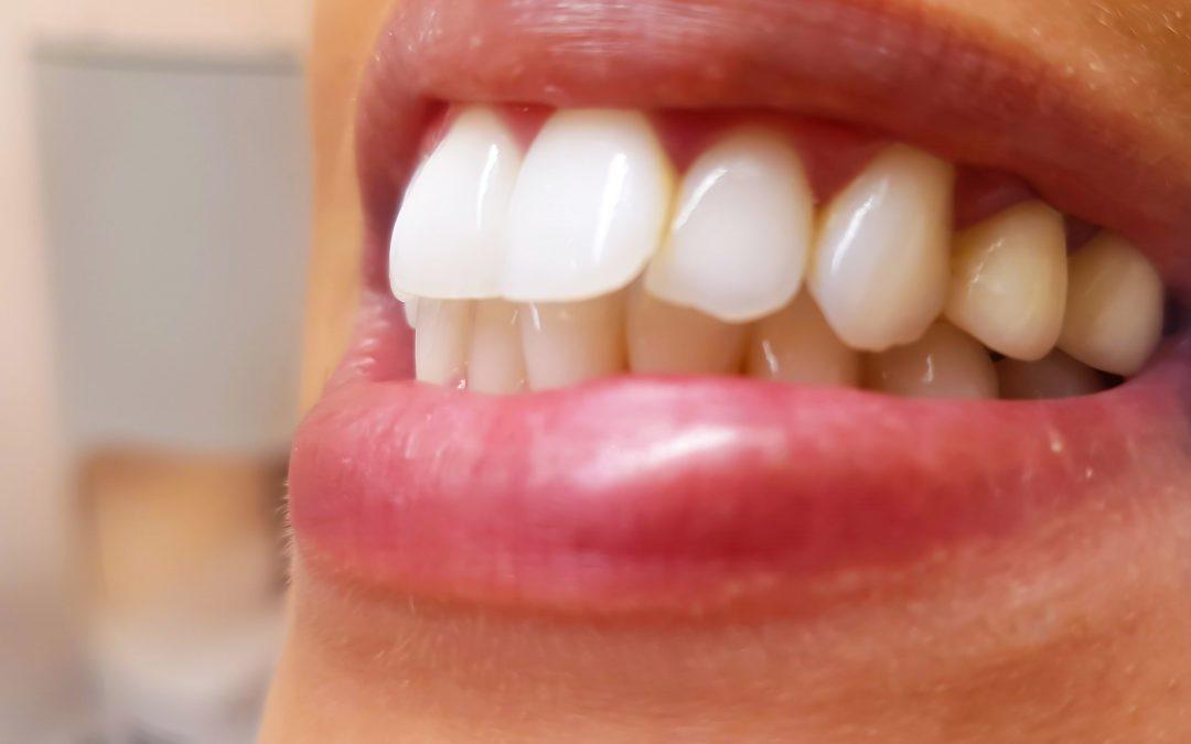 ¿Qué es un técnico en prótesis dental?